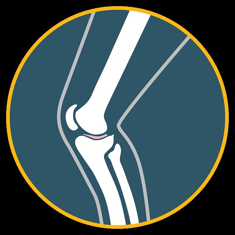 cirurgia-joelho-goiania